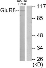Western blot analysis of lysates from mouse brain, using mGluR8 Antibody. The lane on the right is blocked with the synthesized peptide.