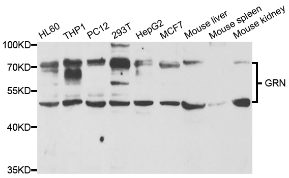 GRN / Granulin Antibody - Western blot analysis of extracts of various cell lines, using GRN antibody.