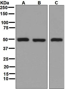 Western blot analysis on (A) 293T, (B) HeLa, (C) HT-1080 cell lysates using anti-GSS antibody.