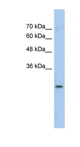 GSTM1 Antibody - GSTM1 antibody Western blot of Jurkat lysate. This image was taken for the unconjugated form of this product. Other forms have not been tested.