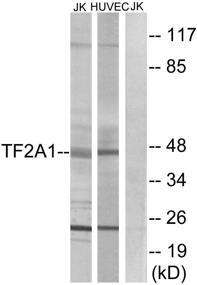 GTF2A1 / TFIIA Antibody - Western blot analysis of lysates from Jurkat and HUVEC cells, using TF2A1 Antibody. The lane on the right is blocked with the synthesized peptide.
