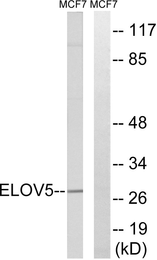HELO1 / ELOVL5 Antibody - Western blot analysis of lysates from MCF-7 cells, using ELOVL5 Antibody. The lane on the right is blocked with the synthesized peptide.