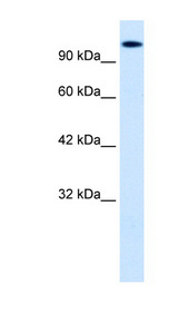 HIPK2 Antibody - HIPK2 antibody Western blot of HepG2 cell lysate. This image was taken for the unconjugated form of this product. Other forms have not been tested.