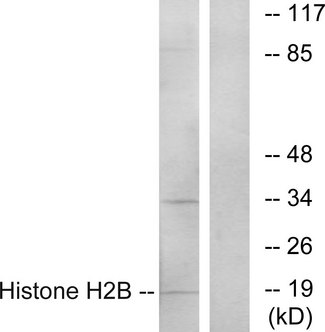 Western blot analysis of lysates from A549 cells, using Histone H2B Antibody. The lane on the right is blocked with the synthesized peptide.