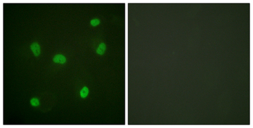 Histone H2B Antibody - Immunofluorescence analysis of HeLa cells, using Histone H2B Antibody. The picture on the right is blocked with the synthesized peptide.