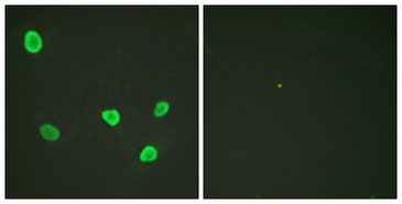 Immunofluorescence analysis of HeLa cells, using Histone H2B Antibody. The picture on the right is blocked with the synthesized peptide.