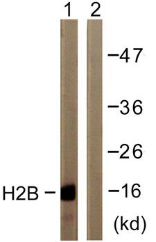 Histone H2B Antibody - Western blot analysis of lysates from COS7 cells, treated with TSA 400nM 24h, using Histone H2B Antibody. The lane on the right is blocked with the synthesized peptide.