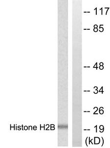 Histone H2B Antibody - Western blot analysis of lysates from Raw264.7 cells, treated with TSA 400nM 24h, using Histone H2B Antibody. The lane on the right is blocked with the synthesized peptide.