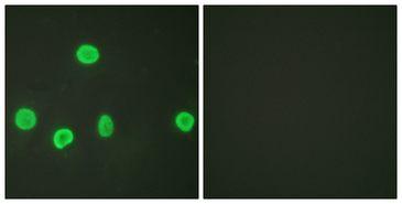 Histone H3 Antibody - Immunofluorescence analysis of HeLa cells, using Histone H3 (Acetyl-Lys18) Antibody. The picture on the right is blocked with the synthesized peptide.