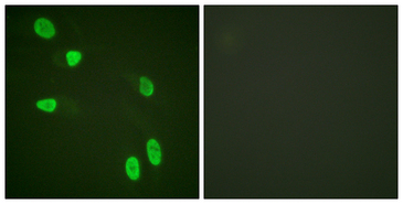 Histone H4 Antibody - Immunofluorescence analysis of HeLa cells, using Histone H4 Antibody. The picture on the right is blocked with the synthesized peptide.