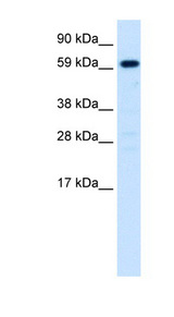 HNF4A / HNF4 Antibody - HNF4A / HNF4 antibody Western blot of Fetal liver lysate. This image was taken for the unconjugated form of this product. Other forms have not been tested.
