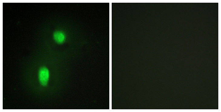 HNRNPC / HNRNP C Antibody - Immunofluorescence analysis of HUVEC cells, using hnRNP C1/C2 Antibody. The picture on the right is blocked with the synthesized peptide.