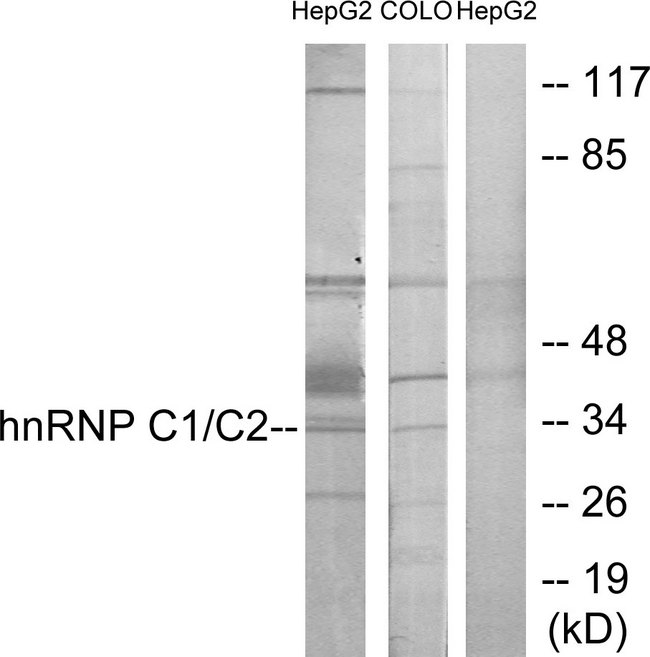 HNRNPC / HNRNP C Antibody - Western blot analysis of lysates from HepG2 and COLO205 cells, using hnRNP C1/C2 Antibody. The lane on the right is blocked with the synthesized peptide.