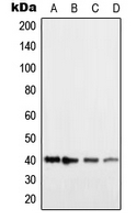 HRH2 / Histamine H2 Receptor Antibody - Western blot analysis of Histamine H2 Receptor expression in HEK293T (A); COLO205 (B); NIH3T3 (C); H9C2 (D) whole cell lysates.