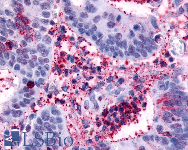 Anti-HRH4 / Histamine H4 Receptor antibody IHC of human Colon, Carcinoma and Inflammatory Cells. Immunohistochemistry of formalin-fixed, paraffin-embedded tissue after heat-induced antigen retrieval.