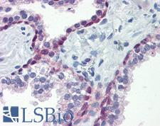 HSF1 Antibody - Anti-HSF1 antibody IHC of human prostate. Immunohistochemistry of formalin-fixed, paraffin-embedded tissue after heat-induced antigen retrieval. Antibody concentration 15 ug/ml.