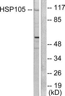 HSPH1 / HSP105 Antibody - Western blot analysis of lysates from HeLa cells, using HSP105 Antibody. The lane on the right is blocked with the synthesized peptide.