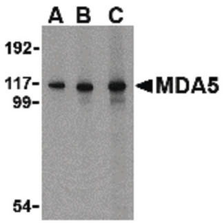 IFIH1 / MDA5 Antibody - Western blot of MDA5 in Daudi cell lysate with MDA5 antibody at (A) 1, (B) 2 and (C) 4 ug/ml.