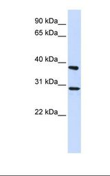 ING4 Antibody - 293T cell lysate. Antibody concentration: 1.0 ug/ml. Gel concentration: 12%.  This image was taken for the unconjugated form of this product. Other forms have not been tested.