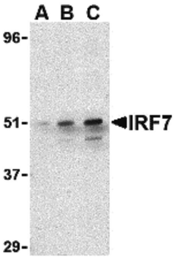 IRF7 Antibody - Western blot of IRF7 in 293 whole cell lysate with IRF7 antibody at (A) 0.5,  (B) 1 ug/ml and (C) 2 ug/ml.