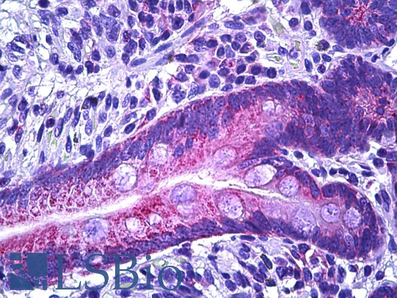 IRS1 Antibody - Anti-IRS1 antibody IHC of human intestine, epithelium. Immunohistochemistry of formalin-fixed, paraffin-embedded tissue after heat-induced antigen retrieval. Antibody dilution 1:100.