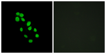 IRX2 Antibody - Immunofluorescence analysis of HepG2 cells, using IRX2 Antibody. The picture on the right is blocked with the synthesized peptide.