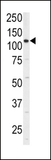 ITGA6/Integrin Alpha 6/CD49f Antibody - Western blot of anti-ITGA6 Antibody (isoform 2 S1064) in 293 cell line lysates (35 ug/lane). ITGA6(arrow) was detected using the purified antibody.