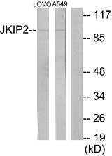 Western blot analysis of lysates from LOVO and A549 cells, using JAKMIP2 Antibody. The lane on the right is blocked with the synthesized peptide.