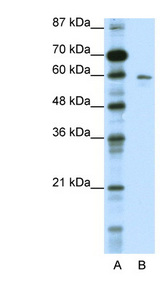 K13 / KCNG Antibody - KCNG1 / Kv6.1 antibody Western blot of HepG2 cell lysate. This image was taken for the unconjugated form of this product. Other forms have not been tested.