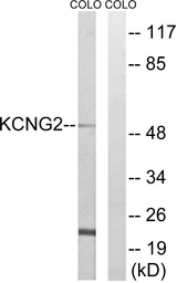 Western blot analysis of lysates from COLO cells, using KCNG2 Antibody. The lane on the right is blocked with the synthesized peptide.