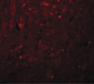 Immunofluorescence of TRESK in Rat Brain cells with TRESK antibody at 20 ug/ml.