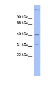 KHDRBS1 / SAM68 Antibody - KHDRBS1 / SAM68 antibody Western blot of Fetal Small Intestine lysate. This image was taken for the unconjugated form of this product. Other forms have not been tested.