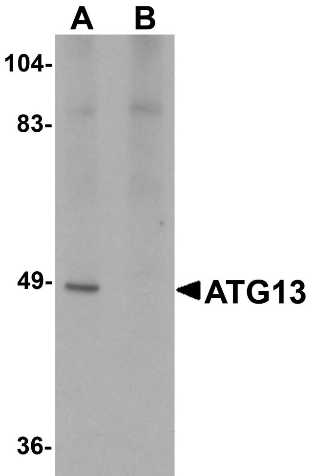 KIAA0652 / ATG13 Antibody - Western blot analysis of ATG13 in rat heart tissue lysate with ATG13 antibody at 1 ug/ml in (A) the absence and (B) the presence of blocking peptide.