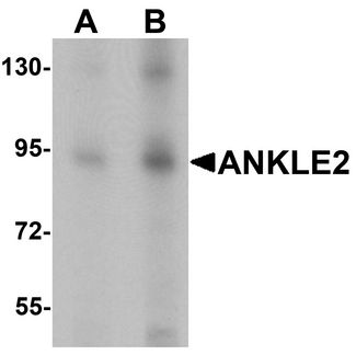 KIAA0692 / ANKLE2 Antibody - Western blot analysis of ANKLE2 in SW480 cell lysate with ANKLE2 antibody at (A) 1 and (B) 2 ug/ml.
