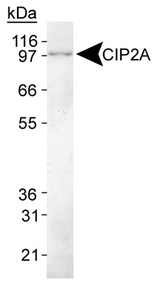 KIAA1524 / p90 Autoantigen Antibody - Detection of CIP2A in HeLa whole cell lysate.  This image was taken for the unconjugated form of this product. Other forms have not been tested.