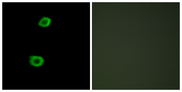 Immunofluorescence analysis of HepG2 cells, using LMTK2 Antibody. The picture on the right is blocked with the synthesized peptide.