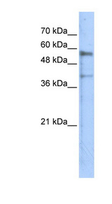 KREMEN1 / KREMEN-1 Antibody - KREMEN1 antibody Western blot of Transfected 293T cell lysate. This image was taken for the unconjugated form of this product. Other forms have not been tested.