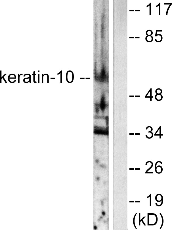 KRT10 / CK10 / Cytokeratin 10 Antibody - Western blot analysis of lysates from HeLa cells, using Keratin 10 Antibody. The lane on the right is blocked with the synthesized peptide.