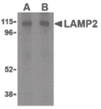 LAMP2 / CD107b Antibody - Western blot of LAMP-2 in HepG2 cell lysate with LAMP-2 antibody at (A) 1 and (B) 2 ug/ml.