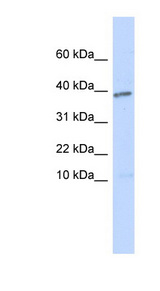 LEFTY1 / Lefty antibody Western blot of Transfected 293T cell lysate. This image was taken for the unconjugated form of this product. Other forms have not been tested.