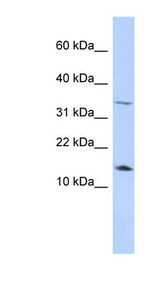 Leptin Antibody - LEP / Leptin antibody Western blot of HepG2 cell lysate. This image was taken for the unconjugated form of this product. Other forms have not been tested.