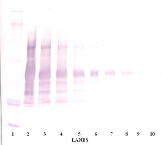 Leptin Antibody - Anti-Human Leptin Western Blot Reduced