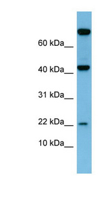 LEP / Leptin antibody Western blot of Fetal Small Intestine lysate. This image was taken for the unconjugated form of this product. Other forms have not been tested.