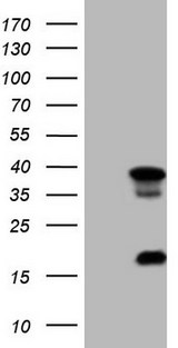 HEK293T cells were transfected with the pCMV6-ENTRY control (Left lane) or pCMV6-ENTRY LGALS9 (Right lane) cDNA for 48 hrs and lysed. Equivalent amounts of cell lysates (5 ug per lane) were separated by SDS-PAGE and immunoblotted with anti-LGALS9.