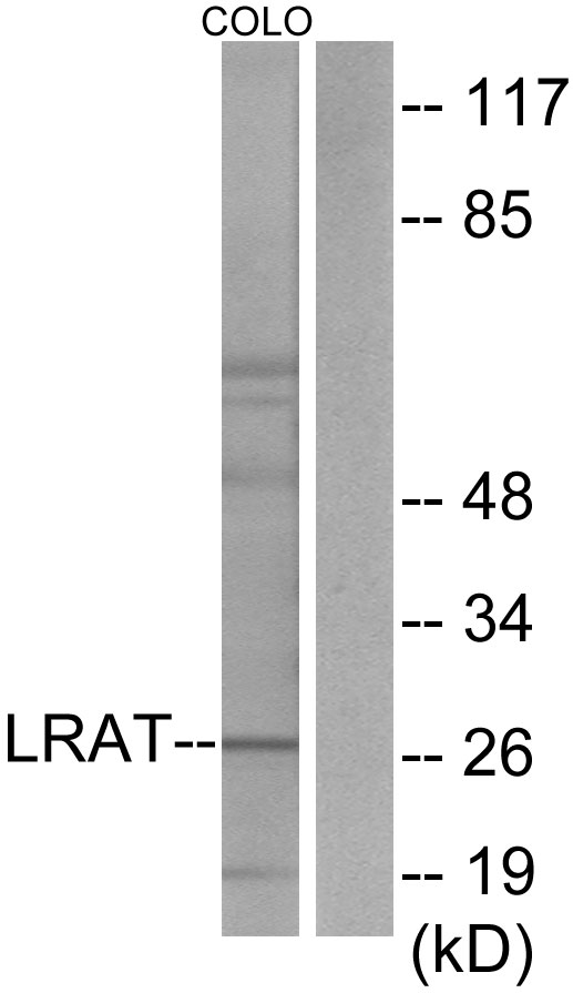 LRAT Antibody - Western blot analysis of lysates from COLO205 cells, using LRAT Antibody. The lane on the right is blocked with the synthesized peptide.