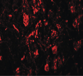 LRRTM4 Antibody - Immunofluorescence of LRRTM4 in human brain tissue with LRRTM4 antibody at 20 ug/ml.