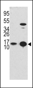 MAP1LC3B / LC3B Antibody - Western blot of APG8b (MAP1LC3B) Antibody (T6) in Y79 cell line lysates and mouse brain tissue lysates (35 ug/lane). MAP1LC3B (arrow) was detected using the purified antibody.