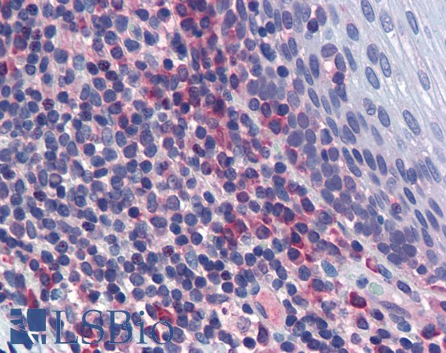 MAPK9 / JNK2 Antibody - Anti-MAPK9 / JNK2 antibody IHC of human tonsil. Immunohistochemistry of formalin-fixed, paraffin-embedded tissue after heat-induced antigen retrieval. Antibody concentration 5 ug/ml.