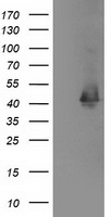 MAPRE2 / EB2 Antibody - HEK293T cells were transfected with the pCMV6-ENTRY control (Left lane) or pCMV6-ENTRY MAPRE2 (Right lane) cDNA for 48 hrs and lysed. Equivalent amounts of cell lysates (5 ug per lane) were separated by SDS-PAGE and immunoblotted with anti-MAPRE2.