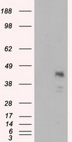 MCL1 / MCL 1 Antibody - HEK293T cells were transfected with the pCMV6-ENTRY control (Left lane) or pCMV6-ENTRY MCL1 (Right lane) cDNA for 48 hrs and lysed. Equivalent amounts of cell lysates (5 ug per lane) were separated by SDS-PAGE and immunoblotted with anti-MCL1.